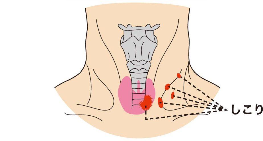 悪性の腫瘍|仙台市泉区で甲状腺の検査・治療は泉大沢ファミリークリニック