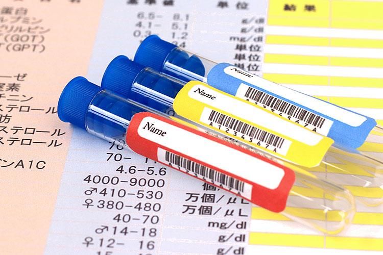 脂質異常症の予防|仙台市泉区の泉大沢ファミリークリニック