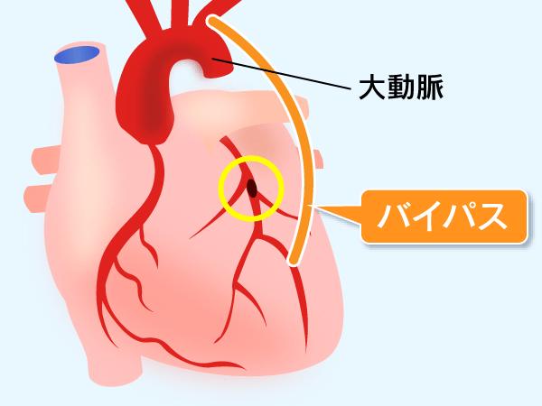 冠動脈バイパス術|仙台市泉区の泉大沢ファミリークリニック